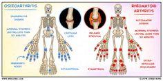 Tips On How To Properly Deal With Arthritis Osteoarthritis Vs Rheumatoid Arthritis, Rheumatische Arthritis, Degenerative Disease, Nursing Assessment, Nursing Mnemonics, Trauma, Medical Surgical Nursing, Nursing School Notes, Medical School