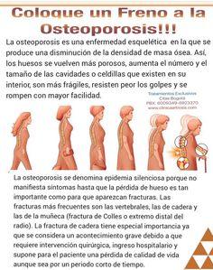 Coloque un freno a la osteoporosis o osteopenia con tratamientos efectivos, seguros en Bogotá,  Colombia. Visítenos en la Clínica de Artrosis y Osteoporosis www.clinicaartrosis.com PBX: +571-6836020, Teléfono Movil: +57-300-2597226 en Bogotá - Colombia.