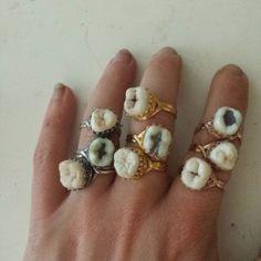 muelas anillos