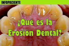 ¿Qué es la erosión dental?   Directorio Odontológico