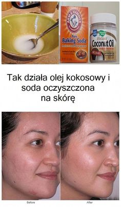How to use coconut oil and baking soda for skin hair and beauty маски, здор Baking Soda For Skin, Baking Soda Coconut Oil, Baking Soda Shampoo, Beauty Tips For Skin, Skin Care Tips, Health And Beauty, Natural Cures, Natural Skin, Gastronomia