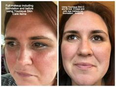 My skin just 5 Days after using Younique skin care.  Illuminate Clean, and Divine Daily Moisturizer. Before this I was using a 6 step very expensive designer skin care line.  I don't think I'll be going back.  www.lyonslashes.com