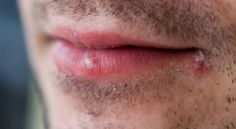 How to Get Rid of Cold Sores Overnight? I'm totally going to try some of these.