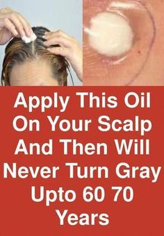 Apply this oil on your scalp and then will never turn gray upto years Grey Hair Cure, Stop Grey Hair, Prevent Grey Hair, Grey Hair Remedies, Hair Loss Remedies, Natural Remedies, Covering Gray Hair, Dramatic Hair, Hair Care Recipes