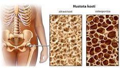 Na předcházení osteoporózy je důležité se zaměřit na dietu ještě předtím, než se dostaví její první příznaky. Rozdíl v pozdějším věku udělá dokonce i to, jestlibyl člověk dostatečně fyzicky aktivní již během dospívání. Je tomu tak proto, protože pohyb stimuluje růst a rozvoj kostí. V tomto článku se dozvíte o třech potravinách, které obsahují všechny …