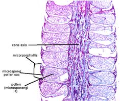 Cross section of Male Pinus Microstrobilus of Phylum Coniferophyta Plant Cell Images, Microscopic Photography, Cross Section, Planting Seeds, Botany, Diversity, Pine Cone, History, School