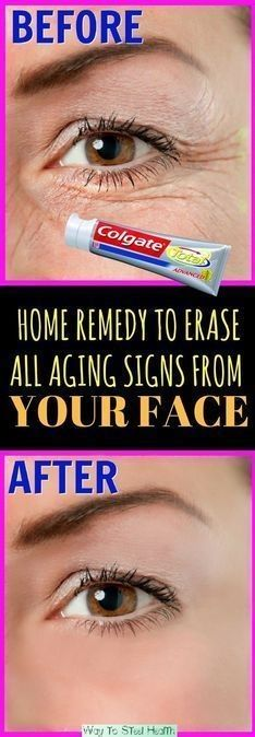 Home Remedy To Erase All Aging Signs From Your Face | Worthy Tips and Tricks