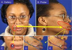 Joint and Implicit Registration for Face Recognition