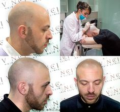 Vinci Hair Clinic is the world's leader in hair restoration and was the first hair clinic in the world to offer Scalp Micropigmentation treatment for hair loss. Since then many clinics have tried to copy our technique and results.   Visit http://www.vincihairclinic.com for more information or to book your free consultation. #microscalppigmentation  #SMP #scalppigmentation  #pigmentation #vincihairclinic