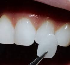 DENTAL VENNERS - MIRACLE within 5 days