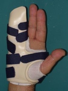 Dupuytren S Contracture Ot Splinting Pinterest Surgery