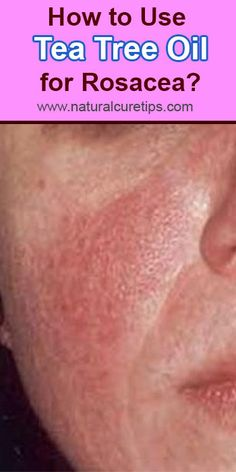 How to Use Tea Tree Oil for Rosacea