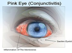 Natural Cure of Conjunctivitis - http://curefordiseases.wordpress.com/2013/03/05/natural-cure-of-conjunctivitis-symptoms-causes-and-home-remedies-triphala-capsules - Planet Ayurveda offer most effective herbal supplement Triphala Capsules for eye diseases cure. Triphala is a powerful eye rejuvenator for treatment of conjunctivitis, progressive myopia, the early stages of glaucoma and cataracts. It is prepared from using best quality herbs and strictly follow the principles of Ayurveda.