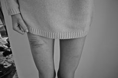 black and white, eating disorder, legs, scars, self harm