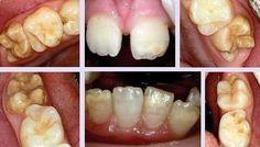SDB Studio Dentistico Balestro: Molar Incisor Hypomineralization (MIH)