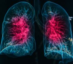 Interstitial Lung Disease in Scleroderma Patients Treatable with Chemotherapy and Immunosuppression, Study Reports - Scleroderma News Autoimmune Disease, Medical Advice, Chronic Illness, Lunges, Health, Protein, Chakras, Smoothie, Medicine