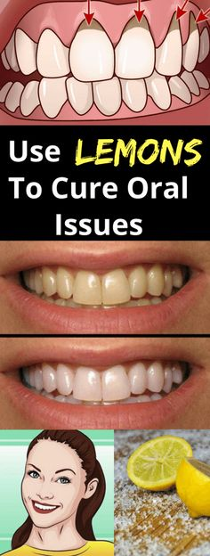 Use Lemons To Cure Oral Issues!!! - All What You Need Is Here