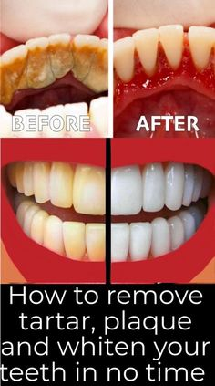 How to remove tartar, plaque and whiten your yellow teeth in few steps!