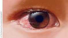 Conjunctivitis, commonly known as pinkeye, is an inflammation of the conjunctiva, the clear membrane that covers the white part of the eye and the inner surface of the eyelids. This infection gets its common name from the color it turns the white of the eye.