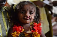 Free Cleft Lip Surgery by trinity care foundation http://trinitycarefoundation.org