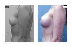 Aumento de pecho realizado a una paciente de 26 años, a la que se le colocan unos implantes redondos de 360cc. El Aumento de pecho se practica vía surco submamario, situándose los implantes en el plano subpectoral.