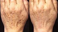 Ce remède à base de riz peut rajeunir la peau du visage de 10 ans