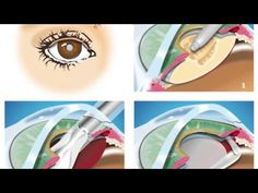 Cataracts, Causes, Symptoms, Diagnosis,and Treatments