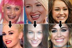 Fotos de famoso de antes y despues de su tratamiento dental