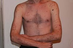 The Complete Guide to Compulsive Skin Picking Disorders ...
