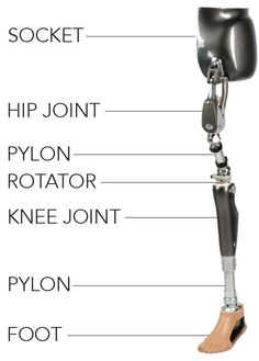 P&O Care is specially equipped to help these patients. These levels of lower extremity amputation require expert prosthetic care due to the loss of three joints: the hip, knee and ankle.