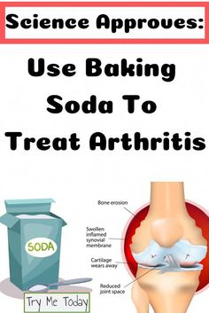 Science Approves: Use Baking Soda To Treat Arthritis - Try Me Today Herbal Remedies, Health Remedies, Home Remedies, Natural Remedies, Make Your Own Toothpaste, Stop Acid Reflux, Vinegar Uses, Stomach Acid, Health And Wellbeing