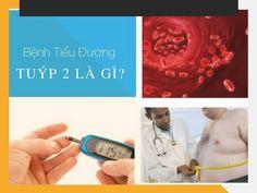 Tiểu đường tuýp 2 là gì?   Bệnh tiểu đường tuýp 2 là gì ? Bệnh tiểu đường là một trong những bệnh mãn tính có diễn biến phức tạp khó điều trị. Theo thống kê bệnh tiểu đường xếp hàng thứ 4 về nguyên nhân gây tử vong, cứ 6 giây lại có một người chết vì căn bệnh này.