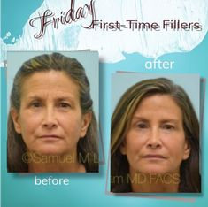 This 52-year-old woman is shown before and 2 weeks after her first-time treatment of Botox and fillers. Wondering how to schedule a consultation with a Double Board Certified Facial Plastic Surgeon, Dr. Lam? Easy! Contact us at: ⠀ ⠀ ⠀ ⠀ ⠀ ⠀ ⠀ ⠀ 📞972-312-8188 ⠀ ⠀ ⠀ ⠀ ⠀ ⠀ ⠀ ⠀ 🌎 www.lamfacialplastics.com ⠀ ⠀ ⠀ ⠀ ⠀ ⠀ ⠀ ⠀ 📩 info@lamfacialplastics.com ⠀ ⠀ ⠀ ⠀ ⠀ ⠀ ⠀ ⠀ 📍6101 Chapel Hill Boulevard, Suite 101, Plano, Texas 75093 ⠀ ⠀ Plano Texas, Facial Rejuvenation, Chapel Hill, Old Women, First Time, Schedule, Plastic, Woman, Board