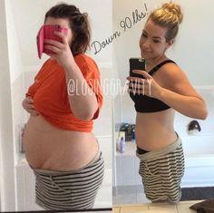 Diese Mutter hat über 50 Kilo verloren - und steht zu den Folgen