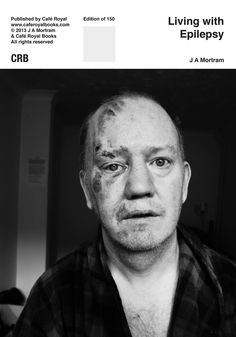 New book with Cafe Royal Books, Living With Epilepsy, will go on pre-order at 6am 19th August + Signed edition (Profit to Epilepsy Action)http://www.caferoyalbooks.comFull ordering details, proofs and page previews to follow.