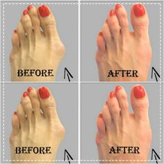 Why Do Doctors Keep This Simple Recipe Away From The Public? Here's How To Get Rid Of Bunions Completely Natural!   Healthy Living 93