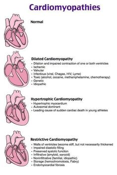 Cardiomyopathy Types Mnemonics Cheat Sheets for Nursing Students. dilated cardiomyopathy causes mnemonic. Dilated Hearts End In Terrible Infiltration. Cardiac Nursing, Nursing Mnemonics, Surgical Nursing, Pathophysiology Nursing, Nursing School Notes, Medical School, Nursing Schools, Medical Students, Nursing Students
