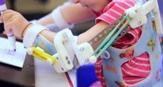 Un exoesqueleto permite la movilidad de niños discapacitados
