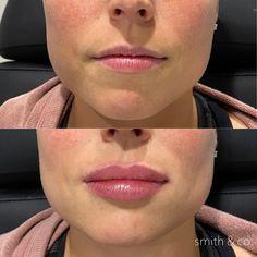Lip Injections, Lip Plumper, Lip Augmentation, Perfect Lips, Fancy Nancy, Cosmetic Procedures, Lip Fillers, Beauty Boutique, Rhinoplasty