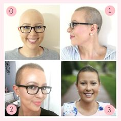 Struggling to grow & style your short hair after chemo? Here are all the tips and products you need to grow and style your hair after chemo. Hair Growth Tips, Healthy Hair Growth, Natural Hair Growth, Hair Tips, Hair Growth After Chemo, Chemo Hair Loss, Growing Hair After Chemo, Best Hair Loss Treatment, Short Hair