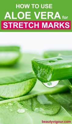 How to Use Aloe Vera for Stretch Marks