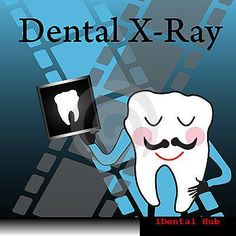 Dental x-rays,commonly called as dental radiographs are an essential part of the dental care. Dental x-rays are an invaluable diagnostic tool for dental practitioners. This is because they allow the dentist to see inside the tooth, revealing things they could never see with just an examination.  http://www.identalhub.com/dental-need-of-dental-xray-in-treatment-704.aspx