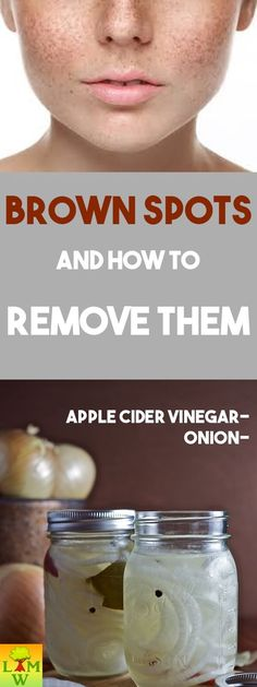 Brown spots, also known as age spots can be scary and can affect our confidence. As we get older, we get more and more dark spots. Brown Spots, Dark Spots, Facial For Oily Skin, Natural Facial, Age Spot Treatment, Age Spot Remedies, Face Age, Age Spot Removal, Beauty Care