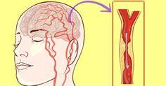 Ter um Acidente Vascular Cerebral (AVC) é um daqueles medos que todos têm quando o assunto é a própria saúde. Mesmo assim, o estilo de vida geral continua contribuindo para que os derrames aconteçam. Pesquisadores canadenses estimaram que 9 em cada 10 AVCs ao redor de todo o mundo são evitáveis, uma vez que sã