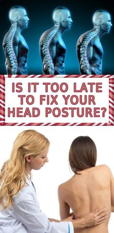 ➤➤➤... top10of10.com/... The #1 Muscle That FIXES Ugly Forward Head Posture, Trouble Sleeping, Text Neck & Back Pain …All While Diminishing Headaches, Brain Fog & Looking Old #health #body #Head #Posture #Trouble #Sleeping #Text #Neck #Back #Pain #HeadachesLooking #Old