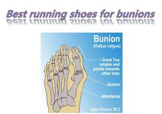 Best running shoes for bunions Best Shoes For Bunions, Bunion Shoes, Best Running Shoes, Presentation, Fitness, Check, Outfits, Women, Suits