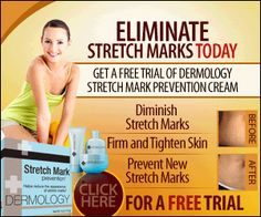 Stretch Mark Cream by Dermology trial offer #stetchmarkcream