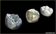 Dental crowns are recommended when a tooth or more teeth are badly damaged by decay, cracked or broken, and when composite resin cannot be used to restore them. Tooth Crown, Dental Cosmetics, Dental Crowns, Dental Problems, Perfect Smile, First Tooth, Dental Services, Cosmetic Dentistry, Dental Implants