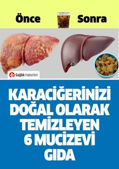6 miraculous foods that cleans your liver naturally! # Sağlıkhaber of Health Advice, Health Care, Clean Your Liver, Lunge, Natural Treatments, Herbal Medicine, Diet And Nutrition, Healthy Life, Herbalism