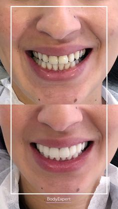 She has done her dental veneers and is completely satisfied with them! Do you like the result? You want a beautiful smile like Mouna? For more information, please contact us! #Bodyexpert #GummySmile #Testimonial #BeforeAfter #SmilePerfect #DentalVeneers #TestimonialDentalCare #Veneers #Emax #Medical #Tourism #Clinic #Dental Care #Turkey #Istanbul #Hollywoodsmile Medical Care, Dental Care, Dental Veneers, Teeth Care, Hair Transplant, Beautiful Smile, Beauty Care, Tourism, Perfect Smile
